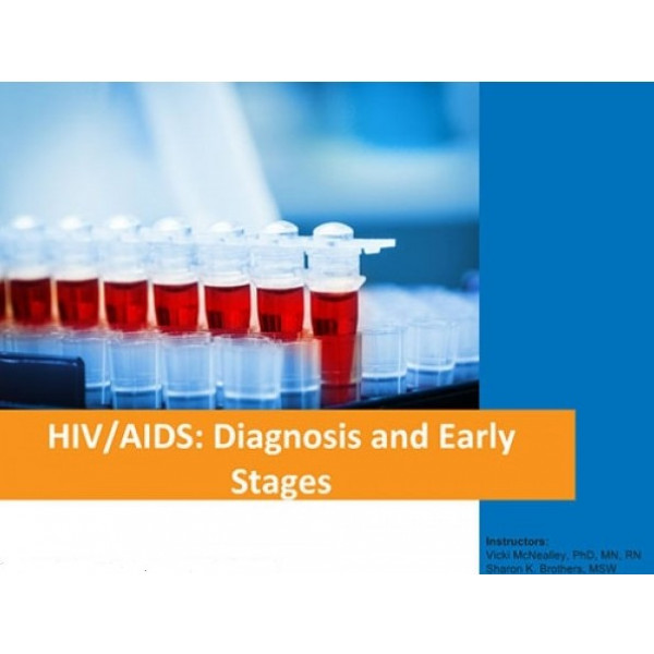 HIV/AIDS: Diagnosis and Early Stages